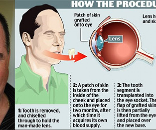 Technology Saves the Day in a Weird Way: Man Loses Eyesight, Doctors Restore It by Implanting His Tooth in His Right Eye