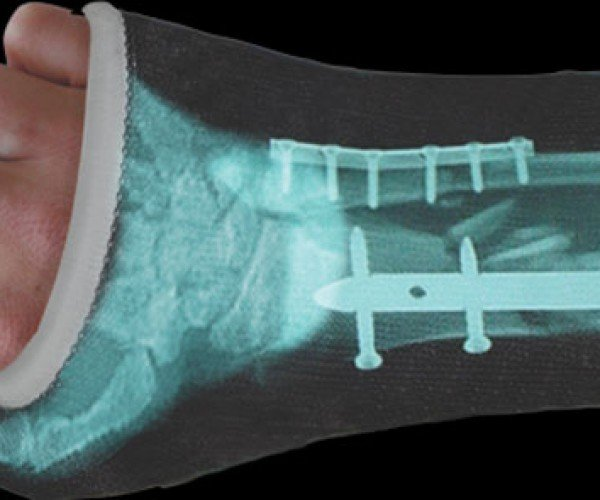Tired of Telling People Why You'Re Wearing a Cast? Get a Casttoo!