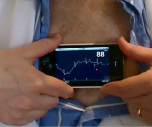 iPhonECG turns iPhones into an Electrocardiograph
