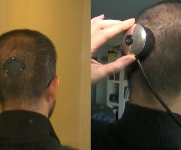 Professor at New York University has Camera Installed in His Head