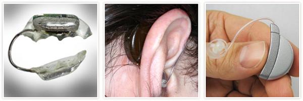 soundbite hearing device 2