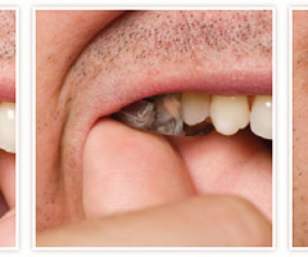 SoundBite Hearing Aid Uses Teeth to Transmit Sound