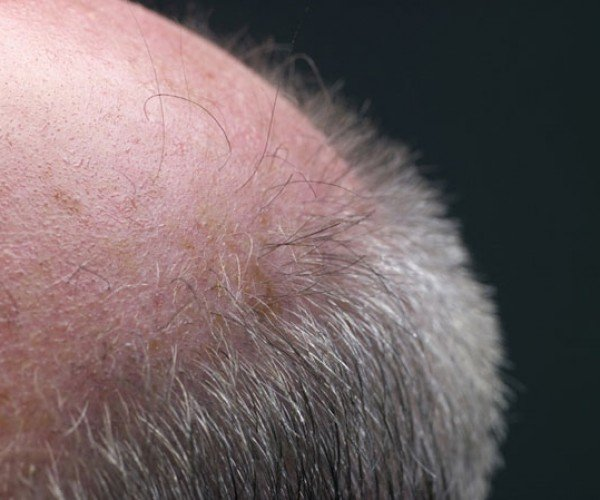 Potential Cure for Baldness Discovered by Accident