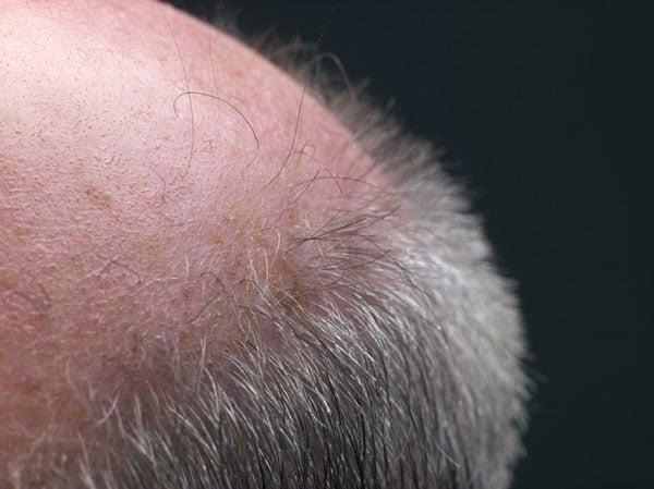 bald tb