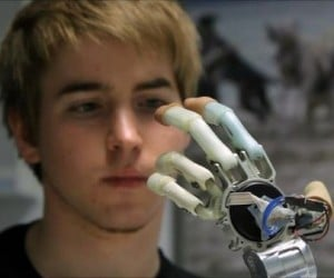Modern Cyborg: Amputee Demonstrates Bionics