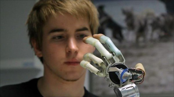 cyborg bionic replacement limb hand robots prosthetic