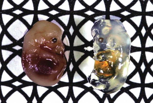 Japanese Riken Chemical Turns Biological Tissues Transparent