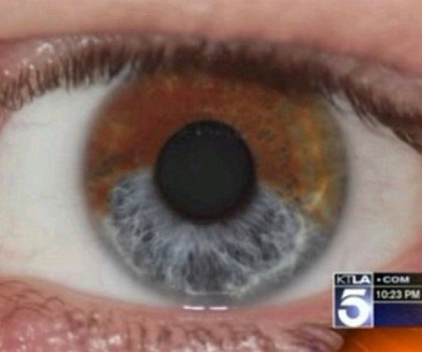 Laser Procedure Can Make Your Brown Eyes Blue – Permanently
