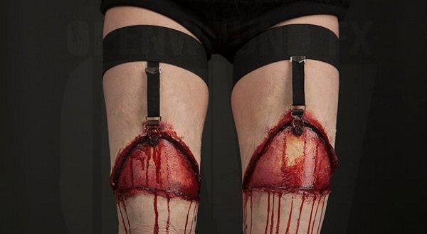 Gartered Legs Open Wound