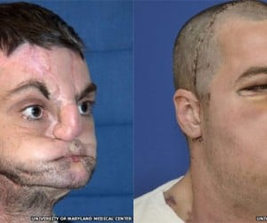 "Man ""Recovering Well"" from Most Extensive Face Transplant in History"