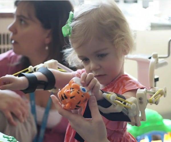 3D-Printed Exoskeleton: Toddler's Magic Arms
