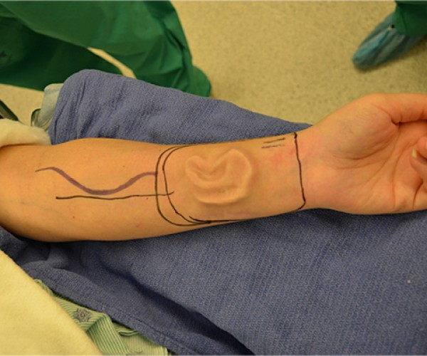 Woman Grows Replacement Ear on Her Arm: Still Easier than Growing a Child in Her Belly