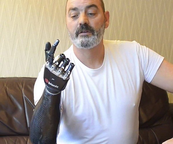 BeBionic3 Prosthetic Gives You a Hand That Luke Skywalker Would Want
