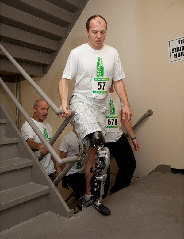 thought controlled bionic leg 1