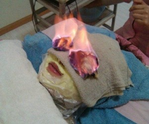 Fire Facial Treatment 'Burns' Wrinkles off – and Maybe Your Face – in the Process