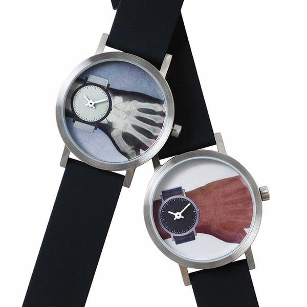 xray_watch_1