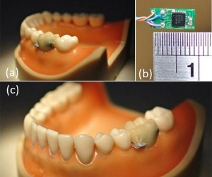 Tooth Sensor Tells Your Doctor If You're Over-Eating or Smoking When You Shouldn't Be