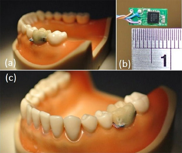tooth_sensor