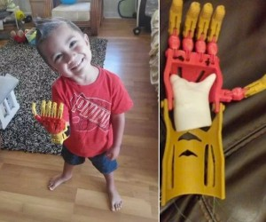 3-year-old Gets Prosthetic Iron Man Hand
