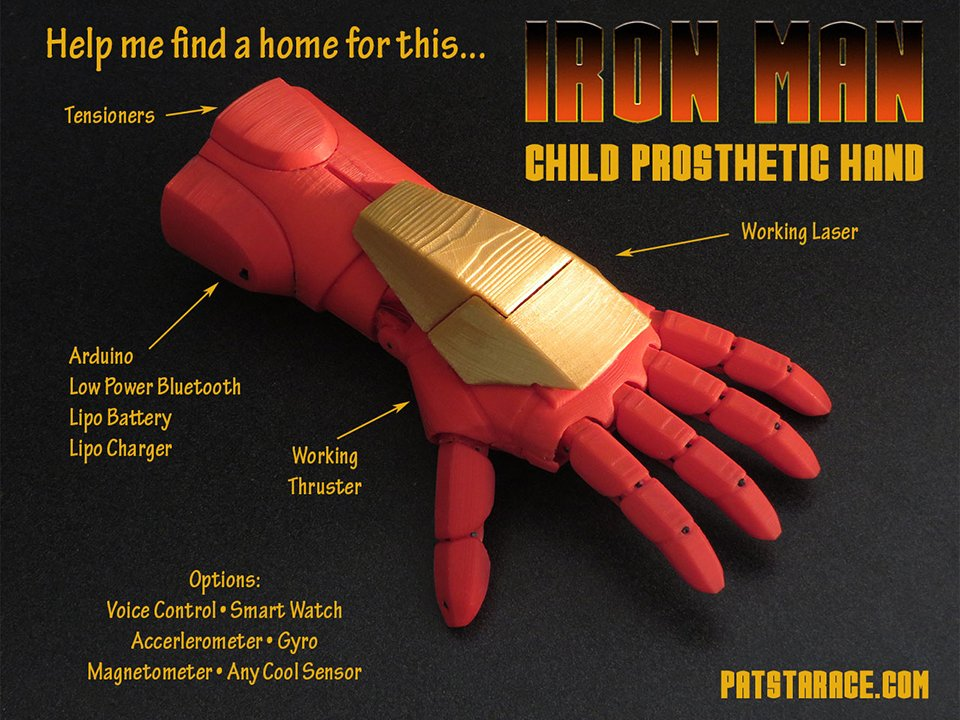 prothesis for toddlers
