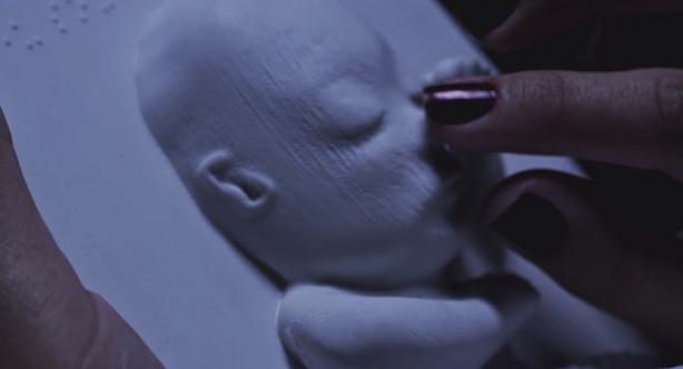 3d_printed_ultrasound_fetus_baby_huggies_1