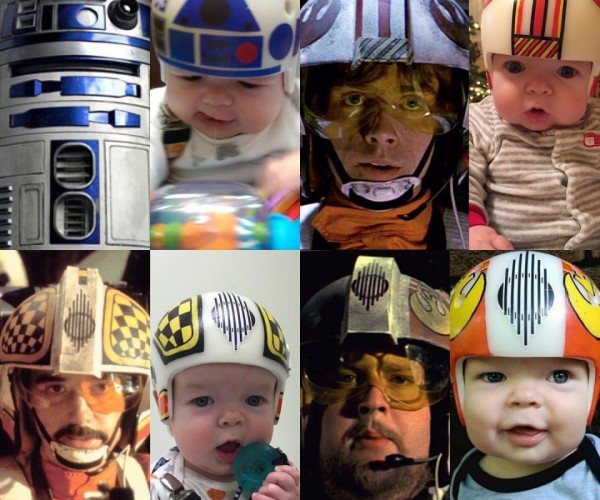 Cool Dad Creates Star Wars Themed Corrective Helmets for His Son