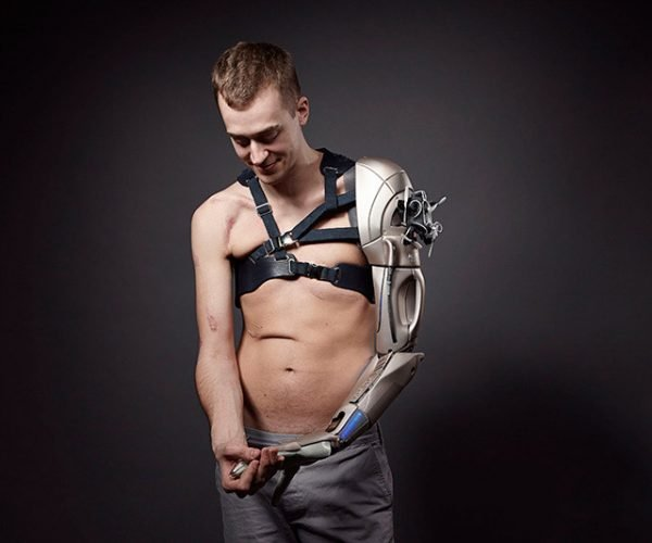 Amputee Gets Awesome Metal Gear Solid Bionic Arm