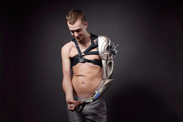 bionic_limb_1