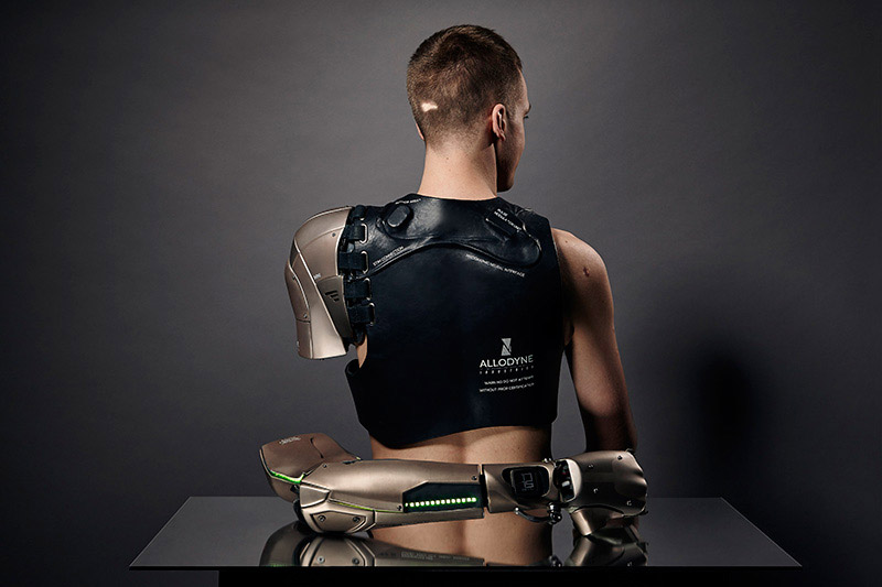 Amputee Gets Awesome Metal Gear Solid Bionic Arm Technabob